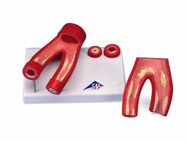 Modelo de Arteriosclerose com Seção Cruzada da Artéria - em 2 Partes - G40 - 3B Scientific