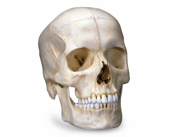 Crânio Bonelike - em 6 Partes - A281 - 3B Scientific