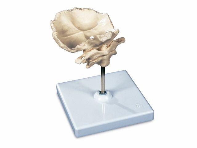 Atlas e Áxis - com Lâmina Occipital - A71/5 - 3B Scientific