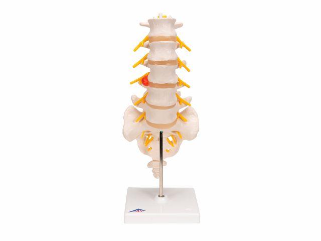 Coluna Vertebral Lombar com Disco Intervertebral Prolapso - A76/5 - 3B Scientific
