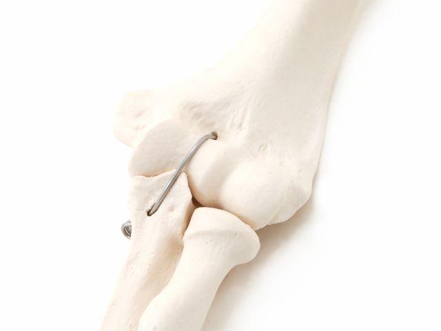 Esqueleto do Braço Esquerdo - A45L - 3B Scientific