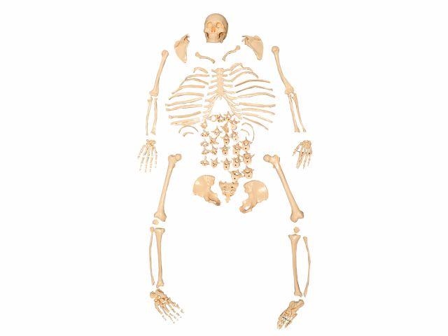 Esqueleto em Tamanho Natural Desarticulado - TGD 0101-C - Anatomic