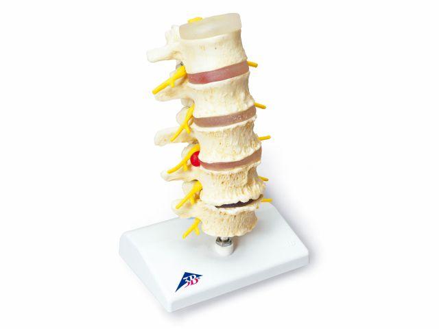 Estágio de Hérnia de Disco e Degeneração das Vértebras - A795 - 3B Scientific