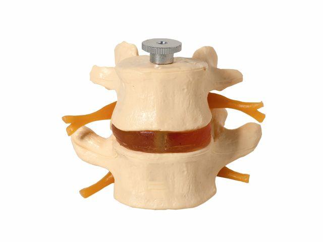 Vértebras Lombares com 2 Discos - TGD-0153-A - Anatomic