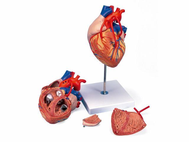 Coração com Pontagem Coronária - Ampliado 2x - 4 Partes - G06 - 3B Scientific