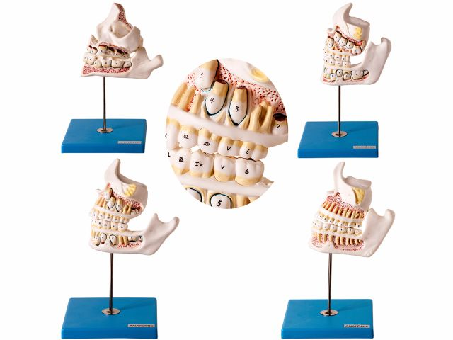 Modelo de Desenvolvimento da Dentição - TZJ 0313 D - Anatomic