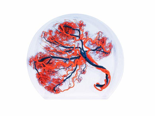 Modelo de Placenta - W10604 - 3B Scientific