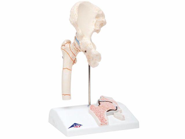 Fratura de Fêmur e Artrose da Articulação Coxofemoral - 3B Scientific