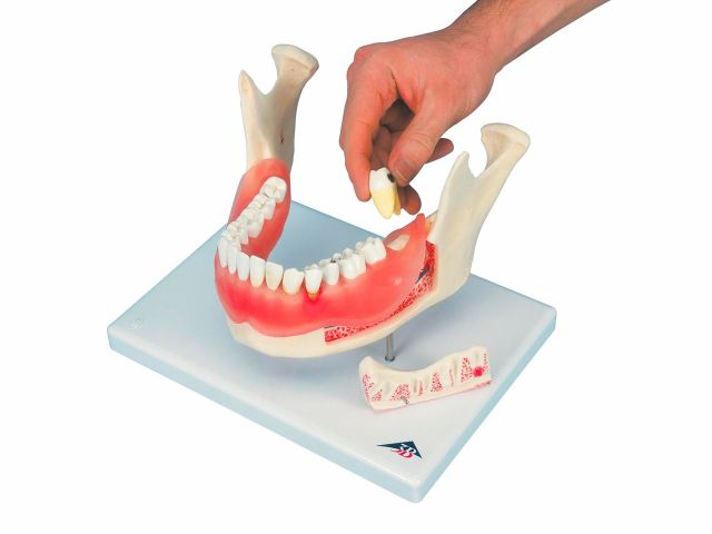 Doença Dental - 2x o Tamanho Natural - D26 - 3B Scientific