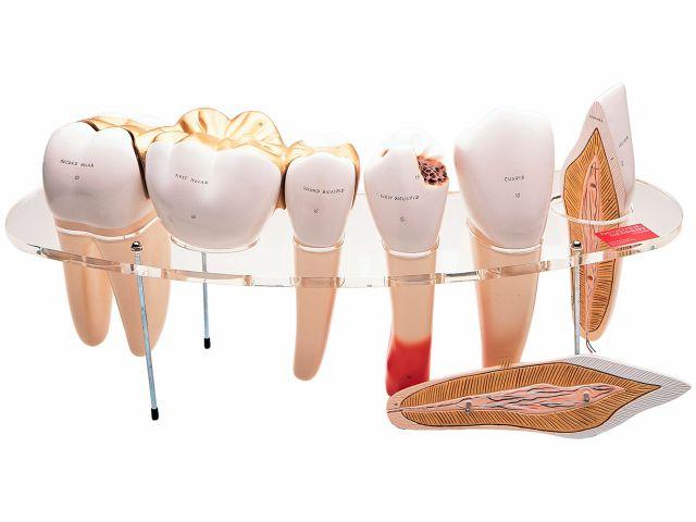 Série de Morfologia Dental - 10x o Tamanho Natural - em 7 Partes - W42517 - 3B Scientific