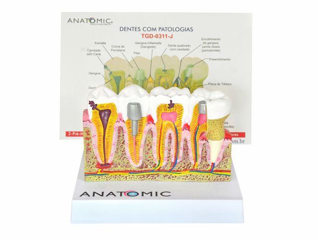 Patologias Dentárias - em Placa Explicativa - TGD-0311-J - Anatomic